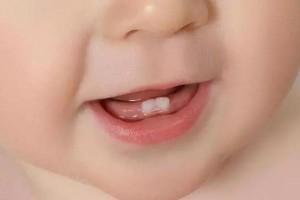 孩子牙齿迟迟不冒头这些小秘密你一定要知道