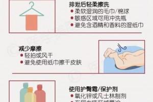 【高阳妇幼•科普】小儿得了尿布疹怎么办