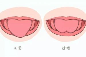 孩子不说话----别把舌系带当成了替罪羊